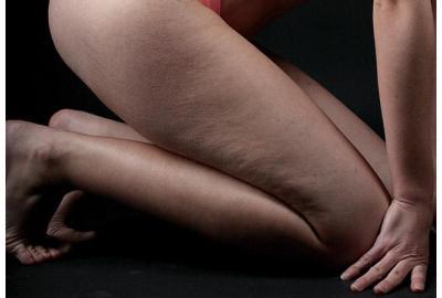 ¿Se puede quitar la piel de naranja en las piernas?